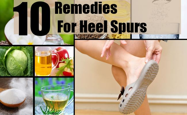 Natural Home Remedies For Heel Spurs