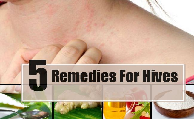 5 Home Remedies For Hives Natural Treatments Cure For
