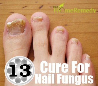 Natural Cure For Nail Fungus - Tips For Treating Nail Fungus ...
