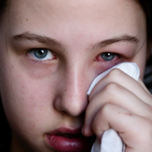 Effective Natural Cures For Pink Eye