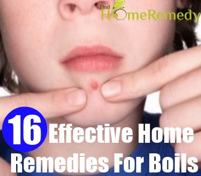 16 Effective  Home Remedies For Boils