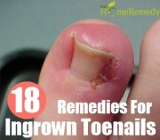 home remedies ingrown toenails