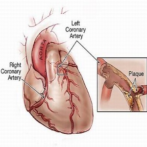Effective Natural Cures For Heart Disease