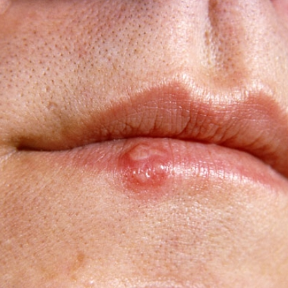 Effective Home Remedies For Cold Sores