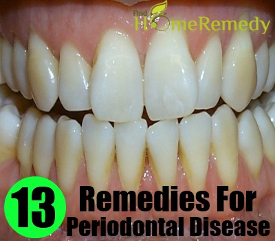 `Periodontal Disease