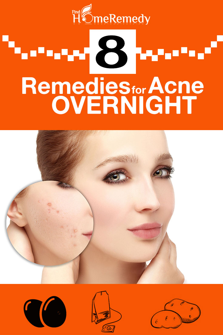 remedy-for-acne-overnight