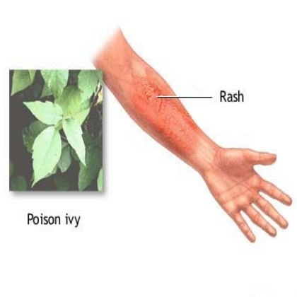poison Ivy Cure