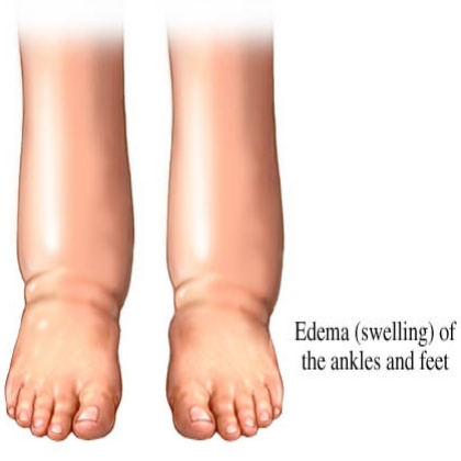 Effective Herbal Remedies For Edema