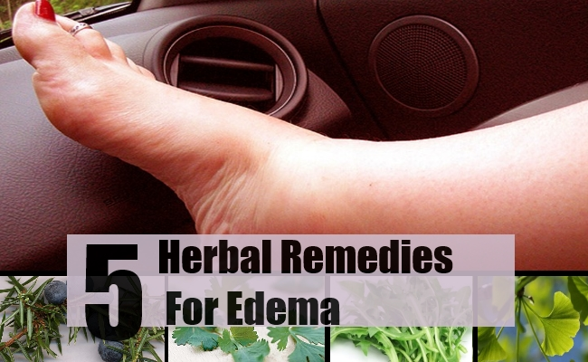 Remedies For Edema