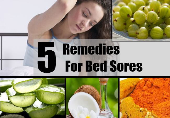 Remedies For Bed Sores