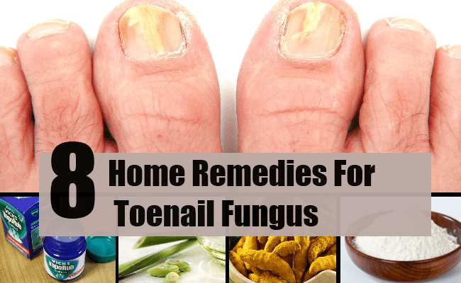 8 Home Remedies For Toenail Fungus - Natural Treatments & Cure For ...