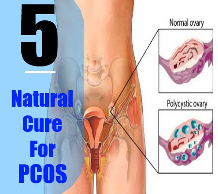 5 Simple Natural Cure For PCOS