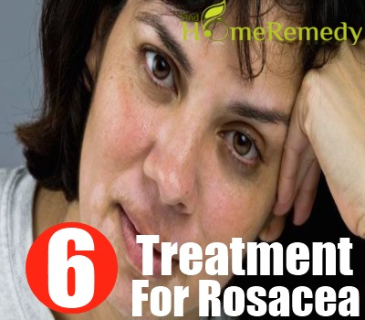 Diet Treatment For Rosacea How To Treat Rosacea With Diet Find