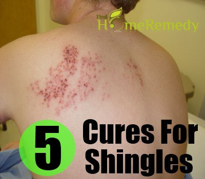 Best Natural Cures For Shingles