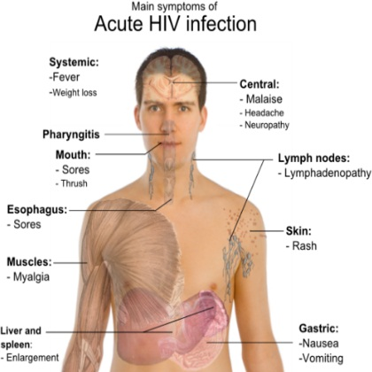 Best Natural Cure For Aids How To Cure Aids Naturally