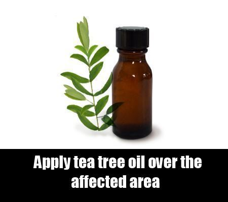 Natural Remedy To Cure Itching From Herpes