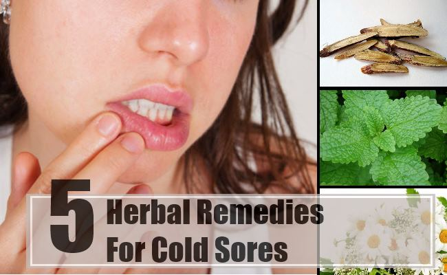 how to get rid of fever blisters inside your mouth