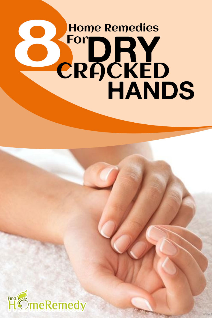 Home treatment for dry cracked hands