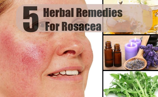Home Remedies For Redness On Face