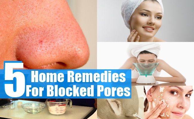 Remedies For Blocked Pores