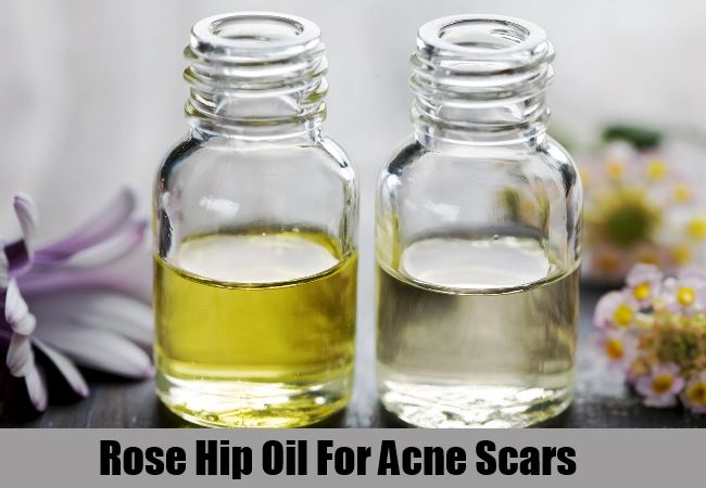 Rose Hip Essential Oil