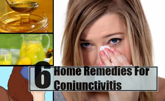 Home Remedy For Pink Eye Lemon Juice