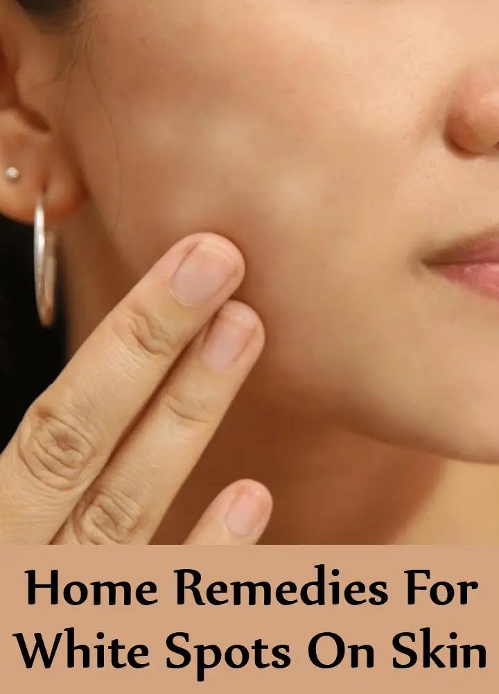 5 Home Remedies For White Spots On Skin