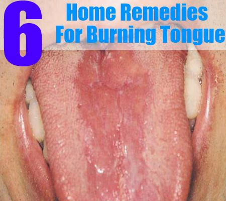 6 home remedies for burning tongue