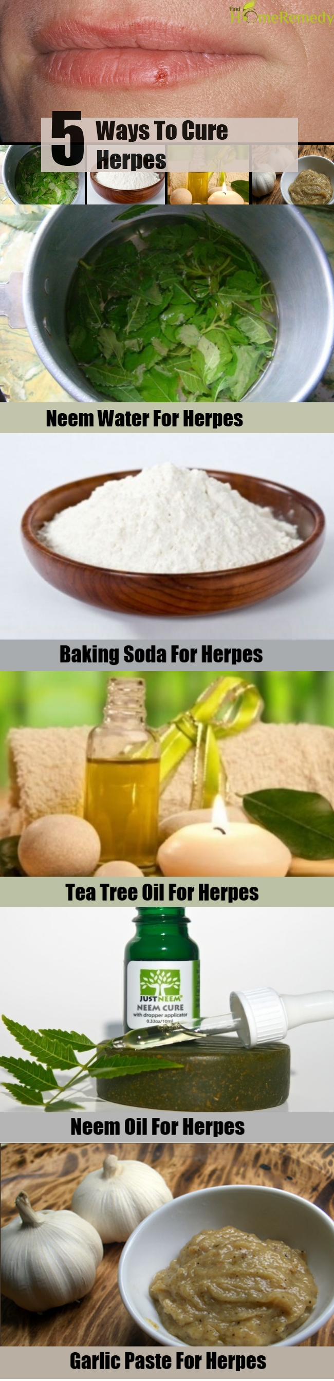 Various 5 Best And Effective Ways To Cure Herpes | Find Home Remedy
