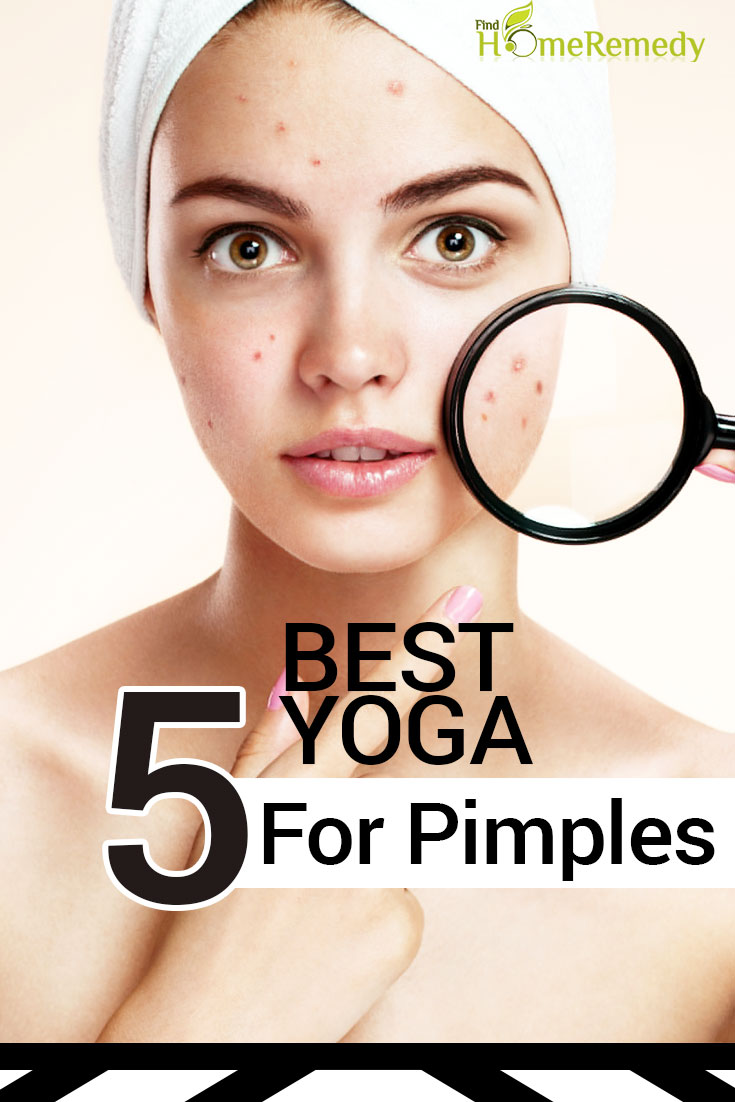 5 Best Yoga For Pimples