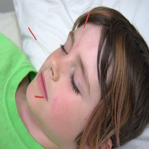 Acupunture for Asthma