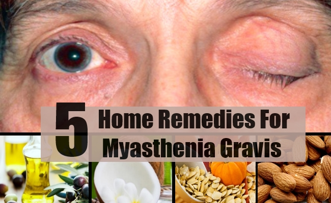Top 5 Home Remedies For Myasthenia Gravis