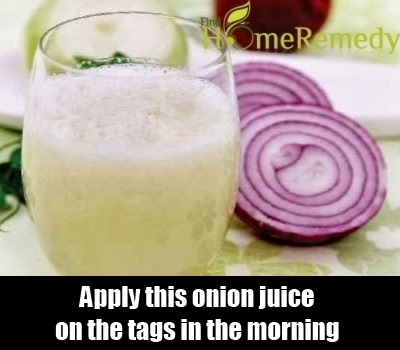 Onion  lemon Juice