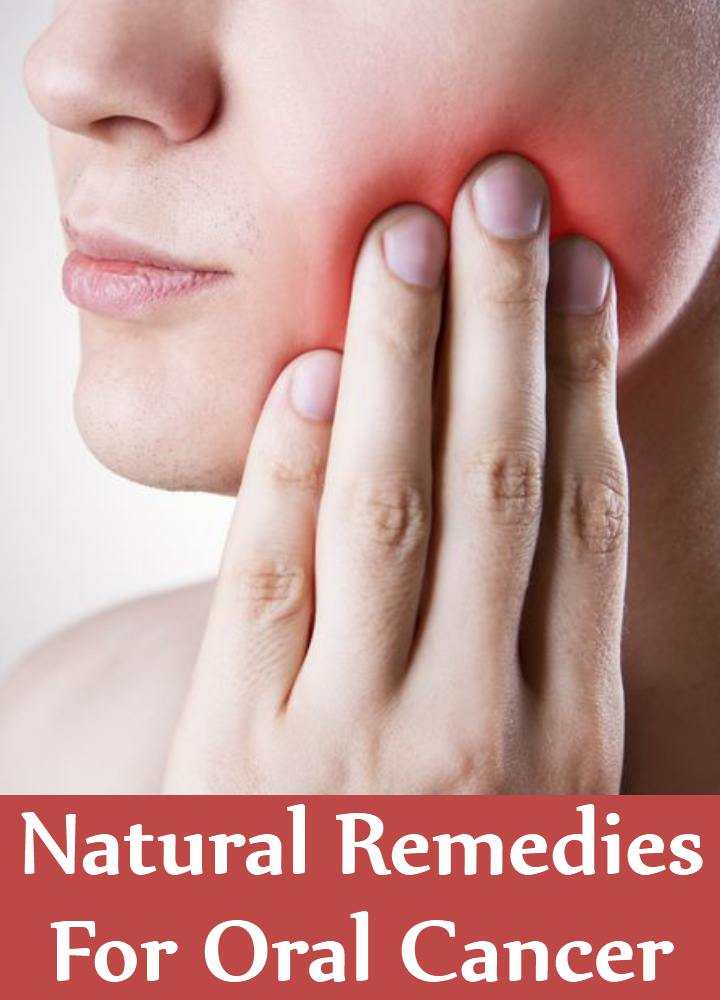 Natural Cures For Oral Cancer