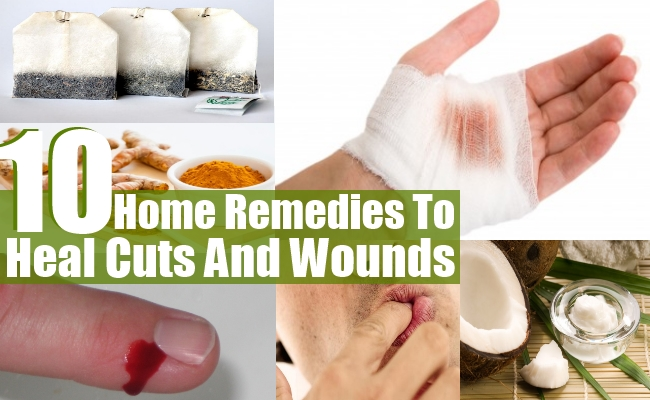 Remedies To Heal Cuts And Wounds
