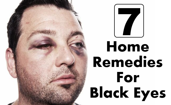 Home Remedies For Black Eyes