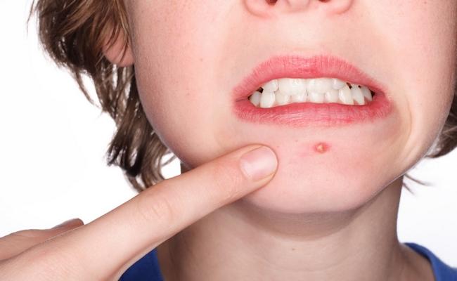 Acne Remedy