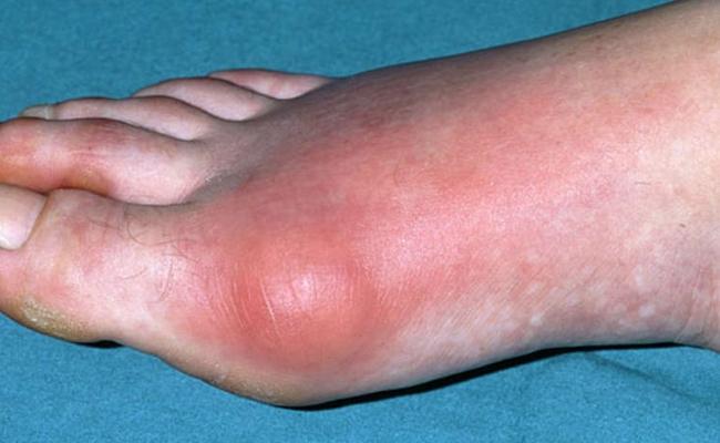 Gout problems