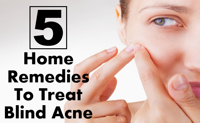Remedies To Treat Blind Acne