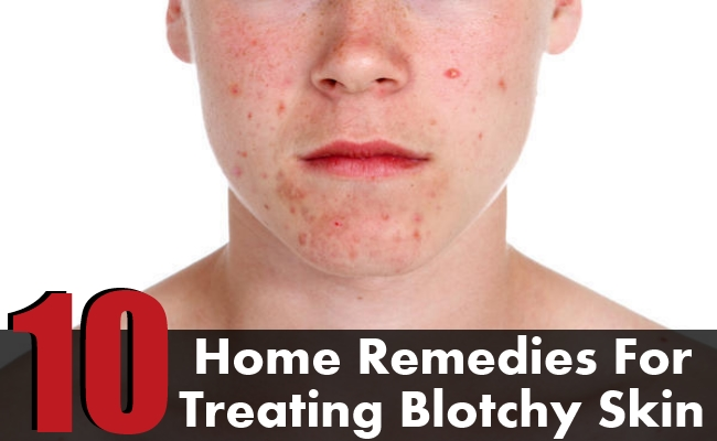 Home Remedies For Treating Blotchy Skin