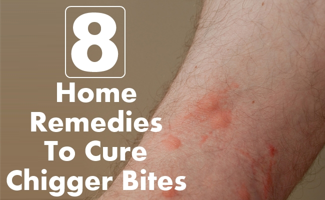 Home Remedies To Cure Chigger Bites