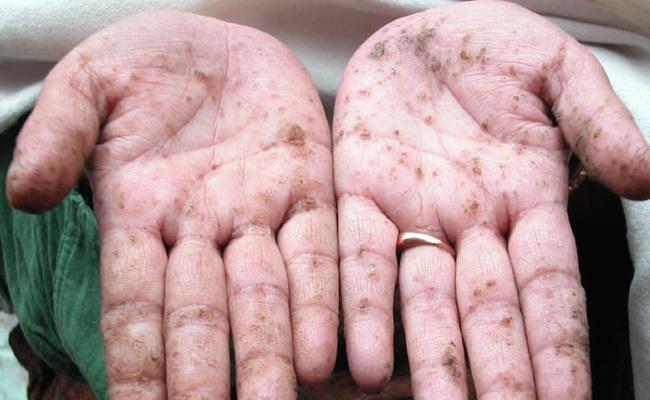 Treatment for arsenic poisoning
