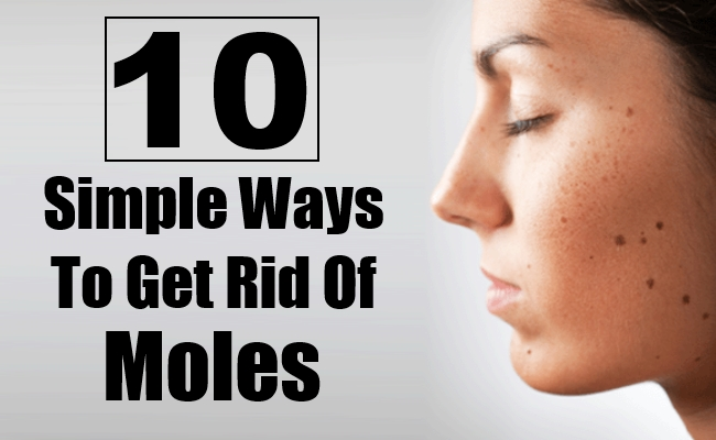 Ways To Get Rid Of Moles