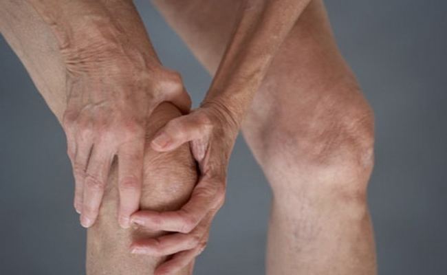 Arnica Provides Relief From Arthritis