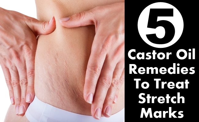 Castor Oil Remedies To Treat Stretch Marks