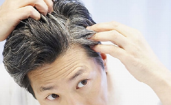 Grey Hair Treatment