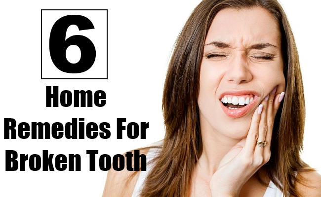 6 Home Remedies For Broken Tooth