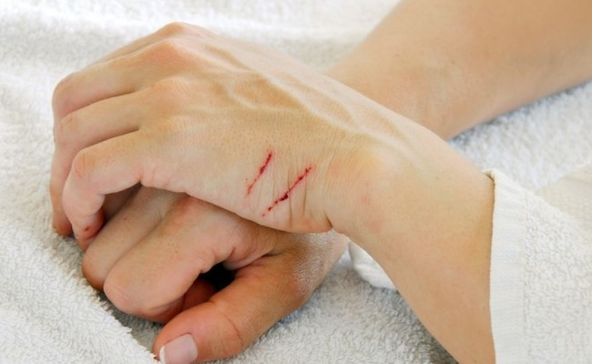 Home Remedies For Healing The Scratches On Skin