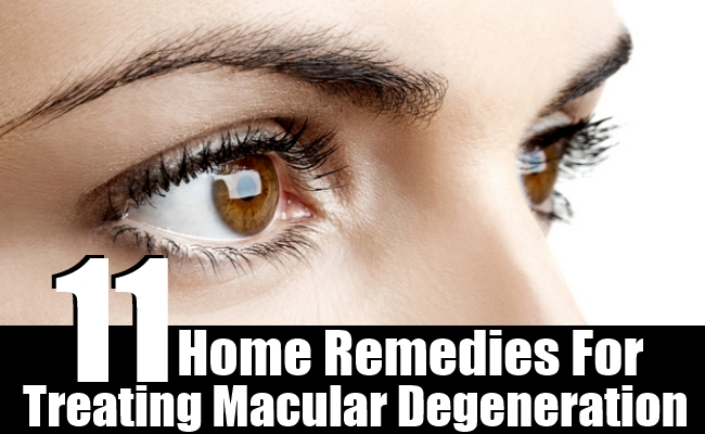 Home Remedies For Treating Macular Degeneration
