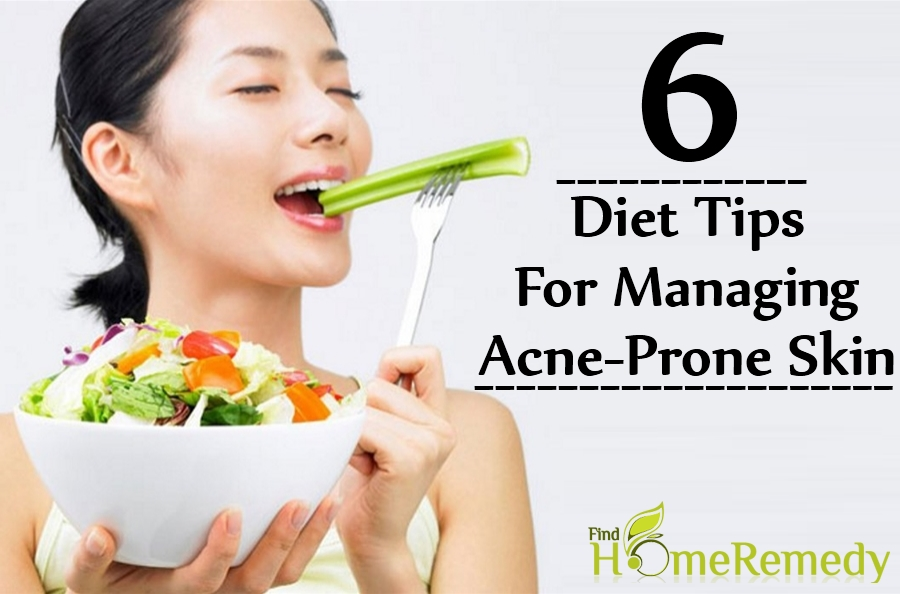 Diet Tips For Managing Acne-Prone Skin